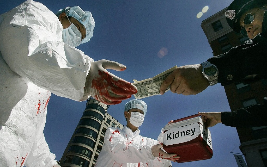 Poverty in Pakistan triggers boost in Illegal Kidney Trade